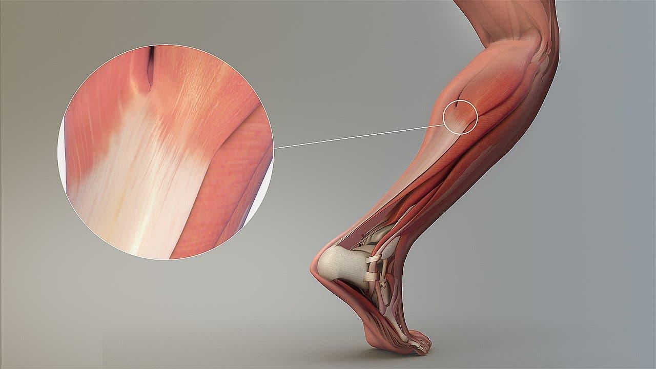 lesiones del tendón