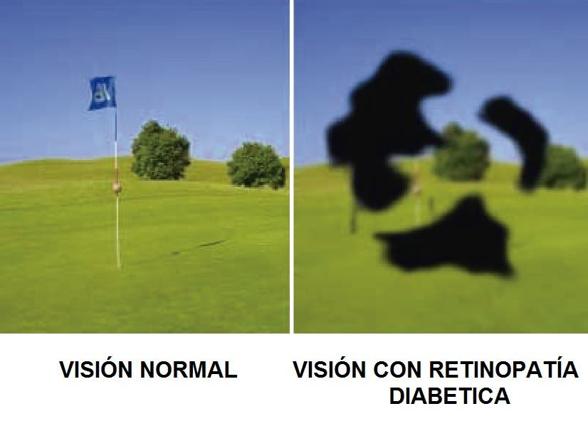 Diabetes y retinipatia diabética