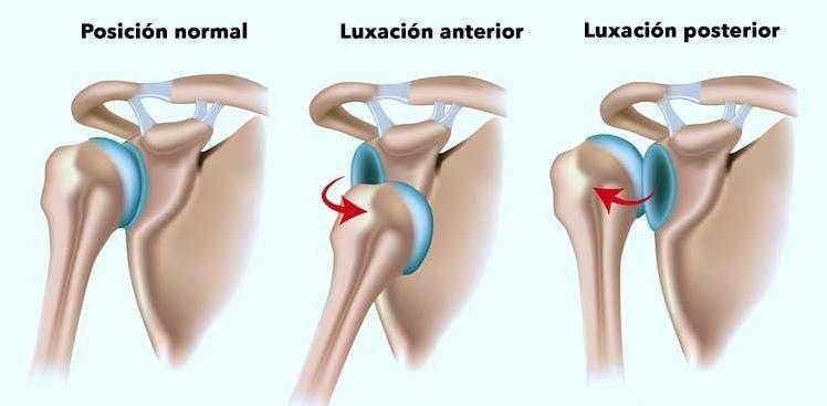 luxación de hombro