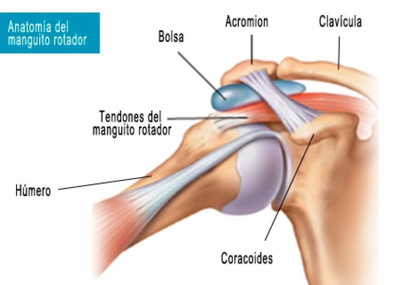 diagnóstico de la tendinitis del Manguito Rotador