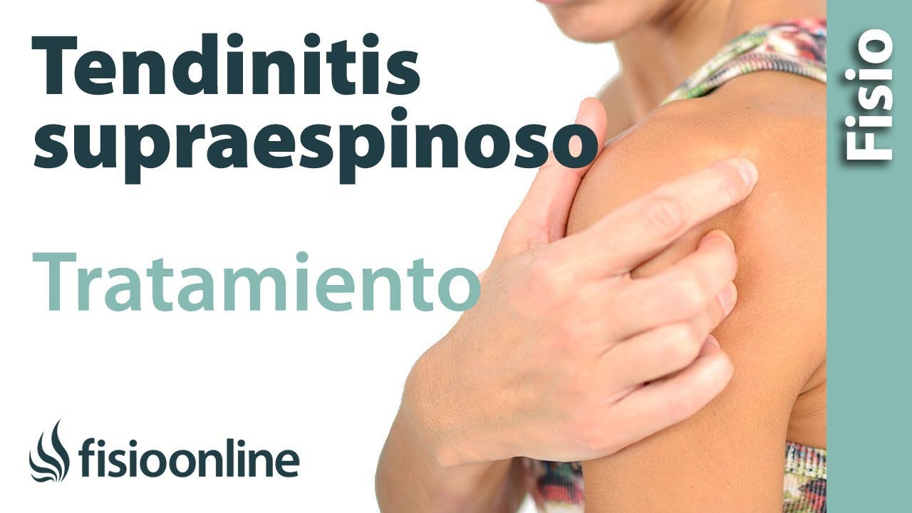 Tratamiento y ejercicios para la tendinitis del supraespinoso del ...