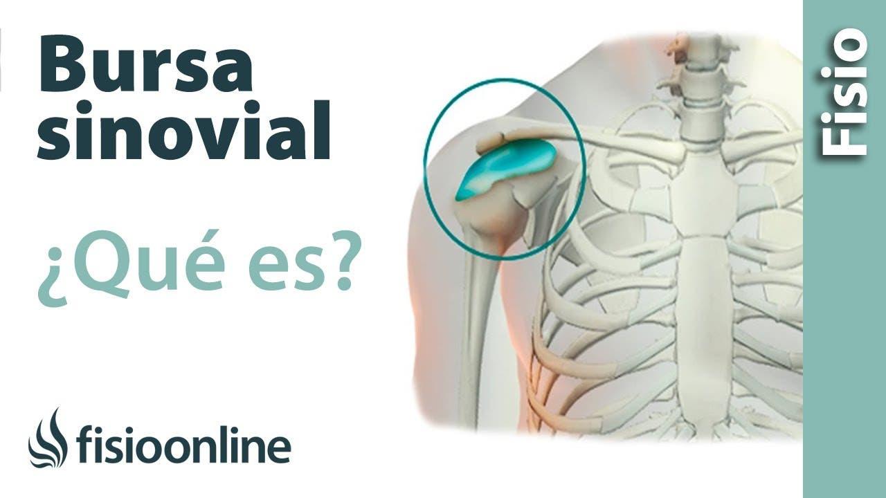 Bursa sinovial y bursitis. ¿Qué es? | Fisioterapia Online
