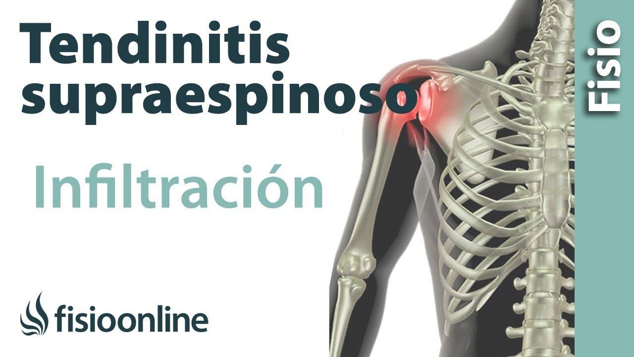 Vídeos de Tendinitis de Hombro, Supraespinoso o Manguito Rotador ...