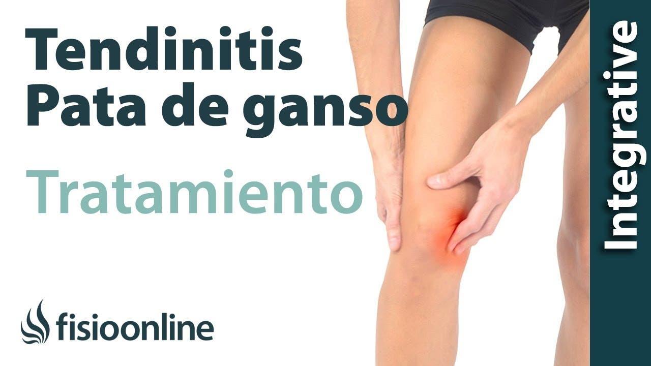 Tratamiento de la tendinitis de la pata de ganso con ejercicios ...