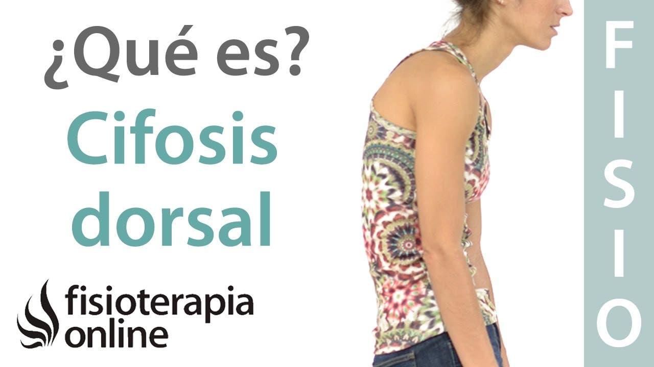 Cifosis, hipercifosis dorsal, dorso plano. ¿Qué es? | FisioOnline