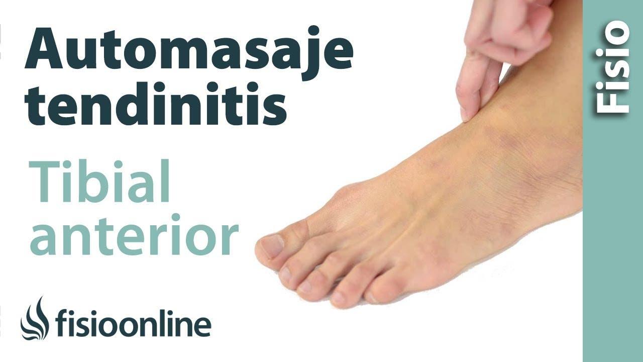 Auto-masaje para la tendinitis del tibial anterior | Fisioterapia Online