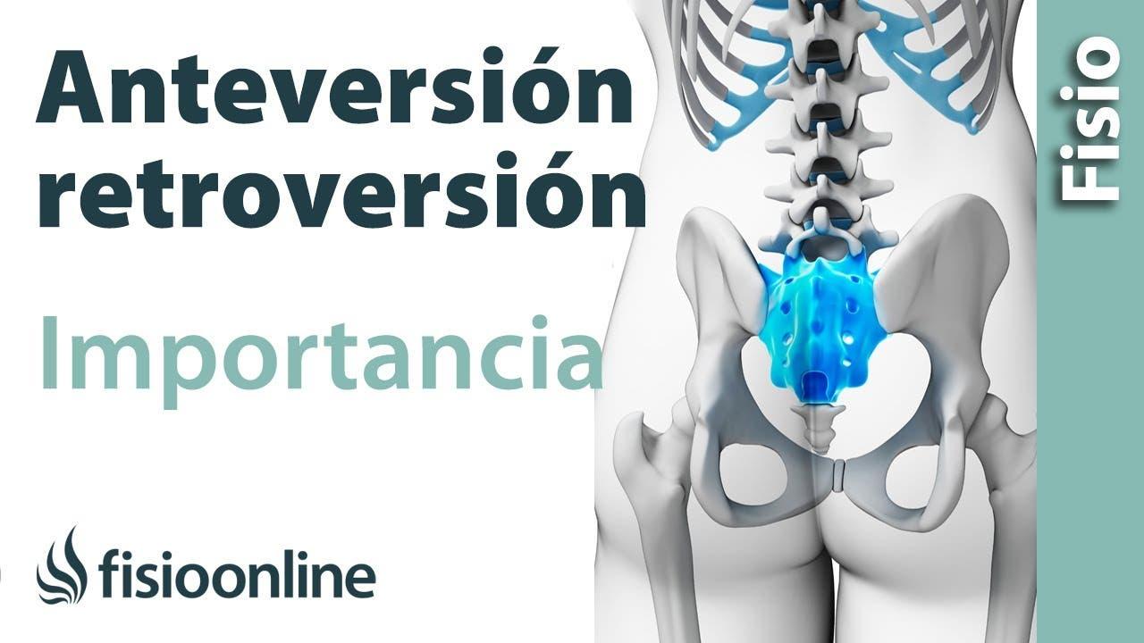 Anteversión y retroversión pélvicas - ¿Qué es?   FisioOnline