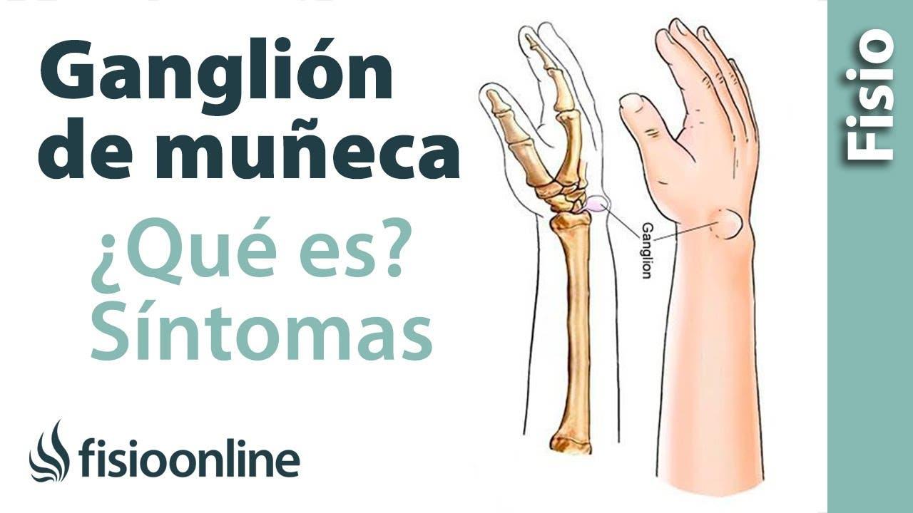 Ganglion de muñeca. ¿Qué es? | Fisioterapia Online