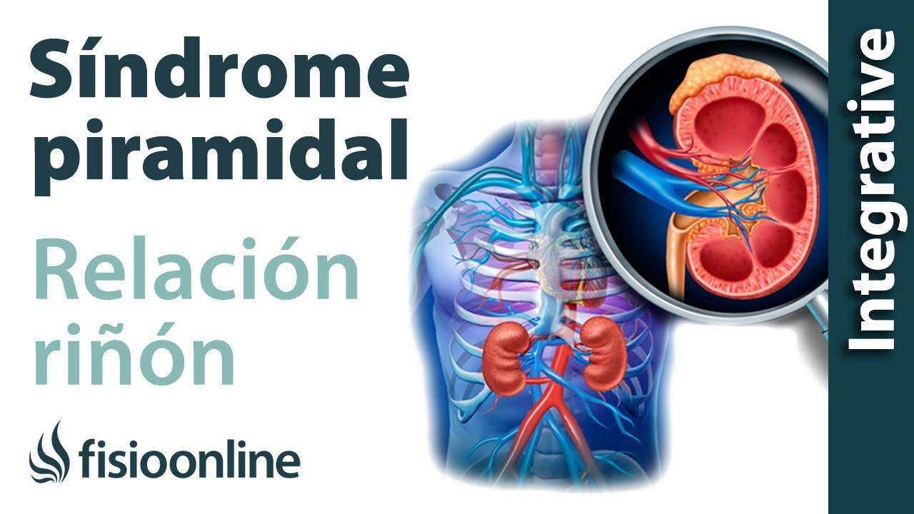 Síndrome del músculo piramidal izquierdo y su relación con el riñón ...