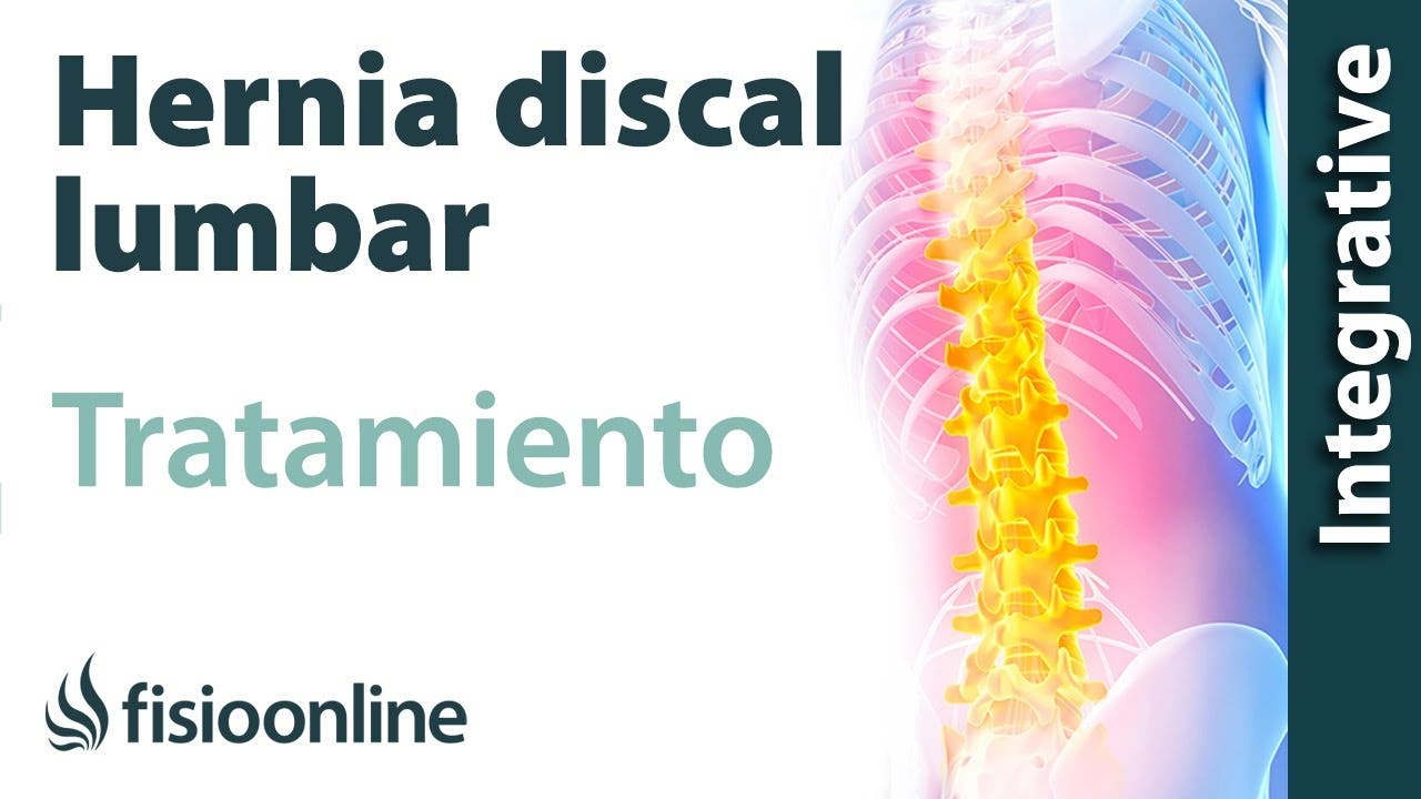 Tratamiento de la hernia discal L5 y S1 izquierda o quinta lumbar y ...