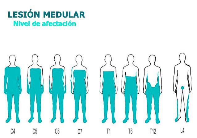 nivel afectacion lesion medular