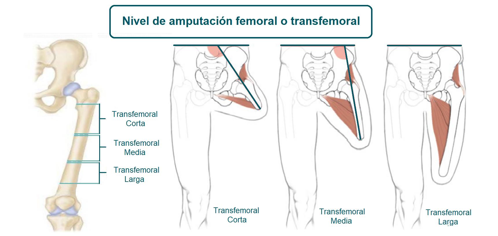 niveles de amputación femoral o transfemoral
