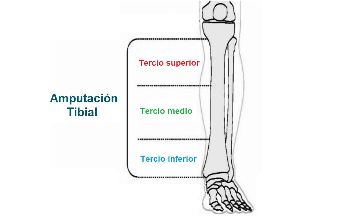 niveles de la amputacion tibial o transtibial