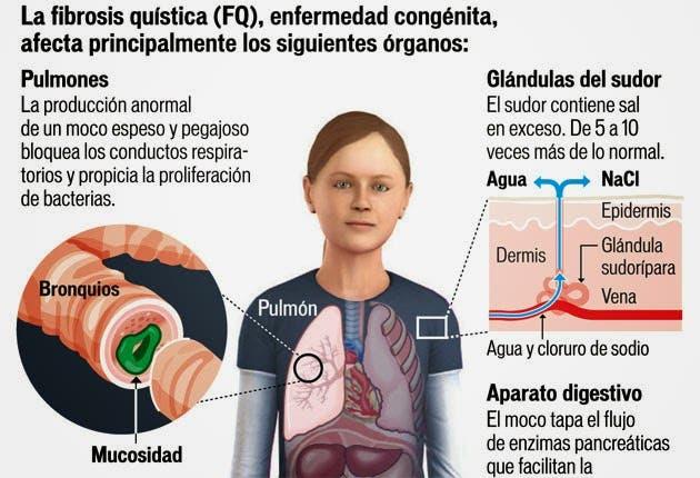Órganos afectados por la fibrosis quística