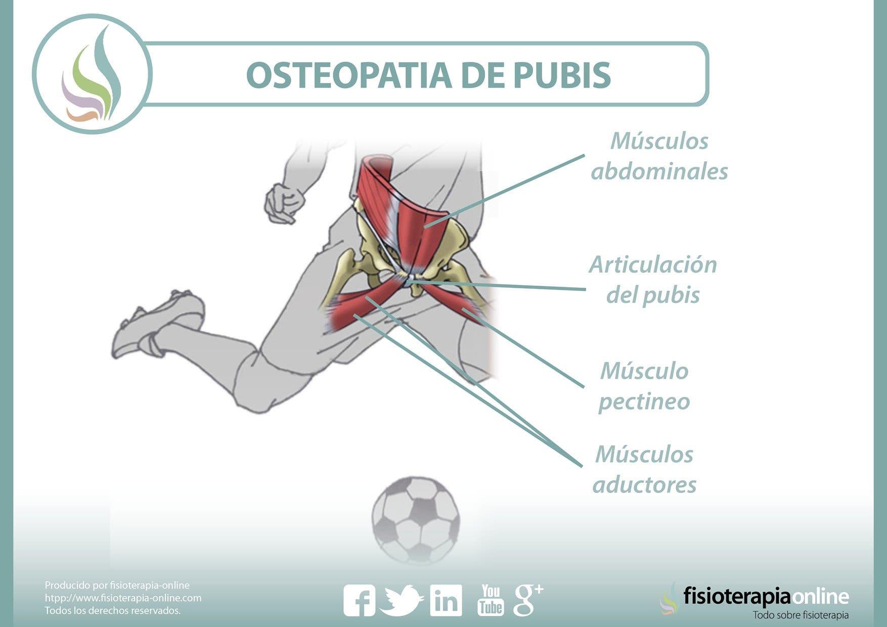 osteopatía de pubis