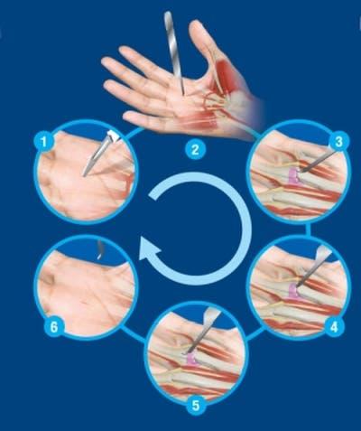 En qué consiste la cirugía del dedo en gatillo o resorte