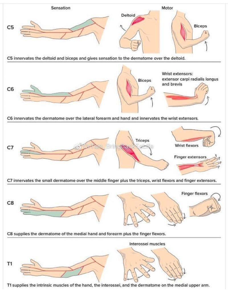 Patrones de los síntomas de la hernia discal cervical