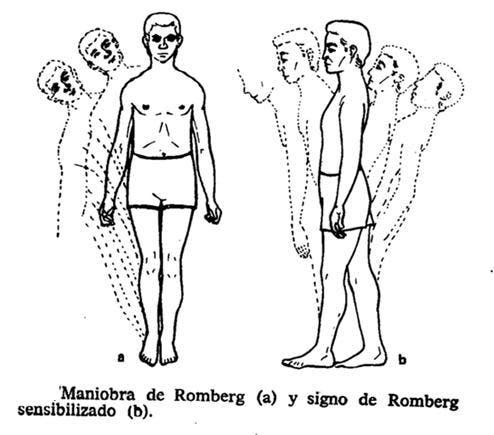 Prueba de romberg en neurología