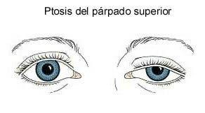 Ptosis parpado superior