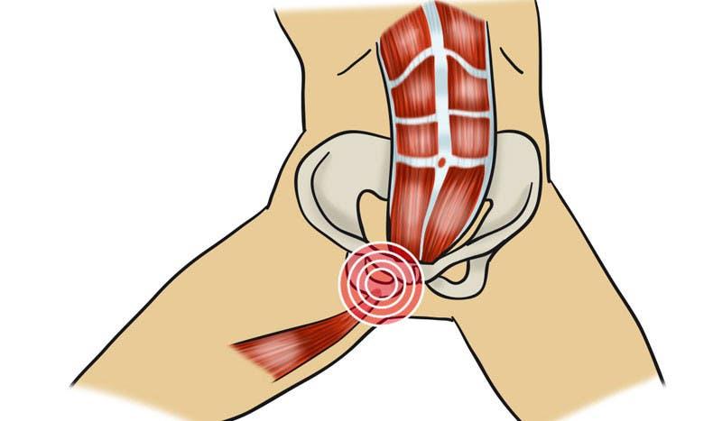 cómo diagnosticar la pubalgia u osteopatía de pubis