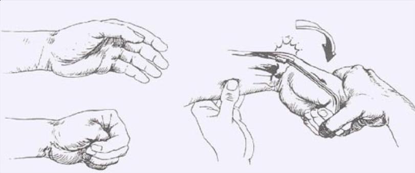 Resultado de imagen para tendinitis de quervain