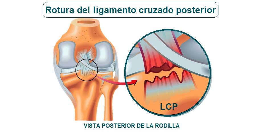 rotura del ligamento cruzado posterior