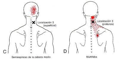 Dolor de cabeza en el cuello izquierdo