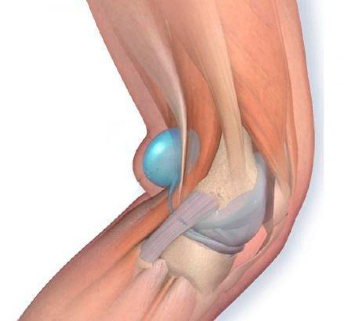 Detrás la izquierda rodilla la por noche de dolor