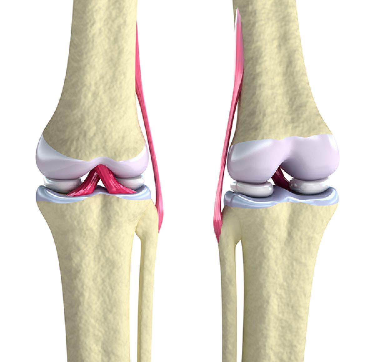 rotura de ligamento cruzado anterior recuperacion sin cirugia
