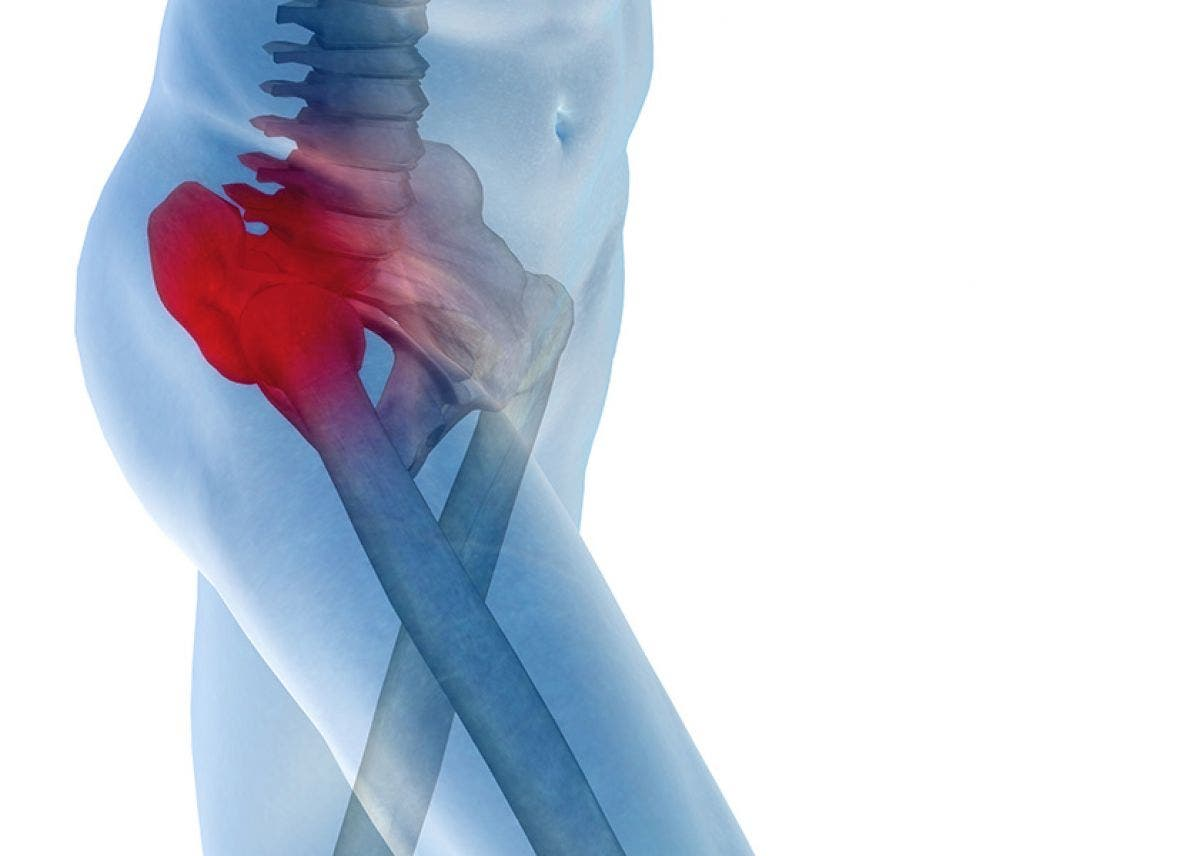 dolor posterior de la cadera izquierda y la pelvis