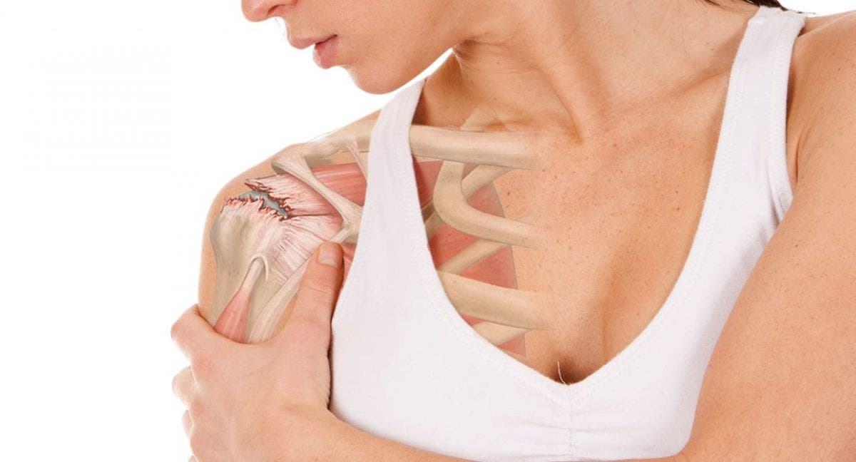 contractura muscular pectoral síntomas