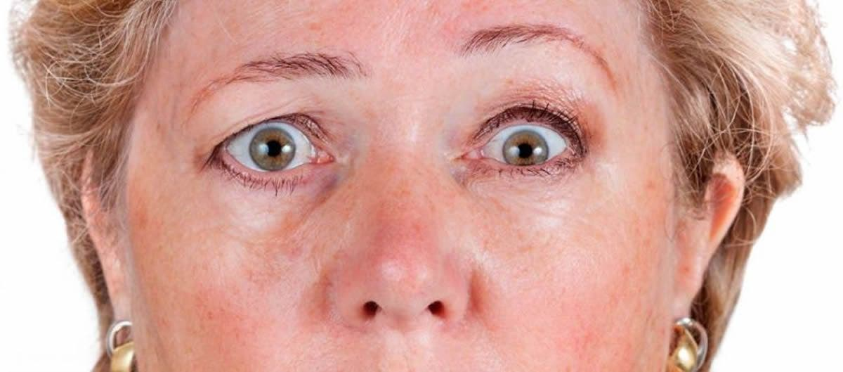 síntomas de diabetes cervical braquial
