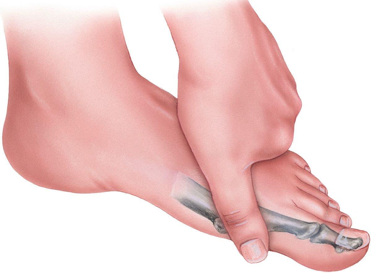 dedo pie fracturado sintomas de diabetes