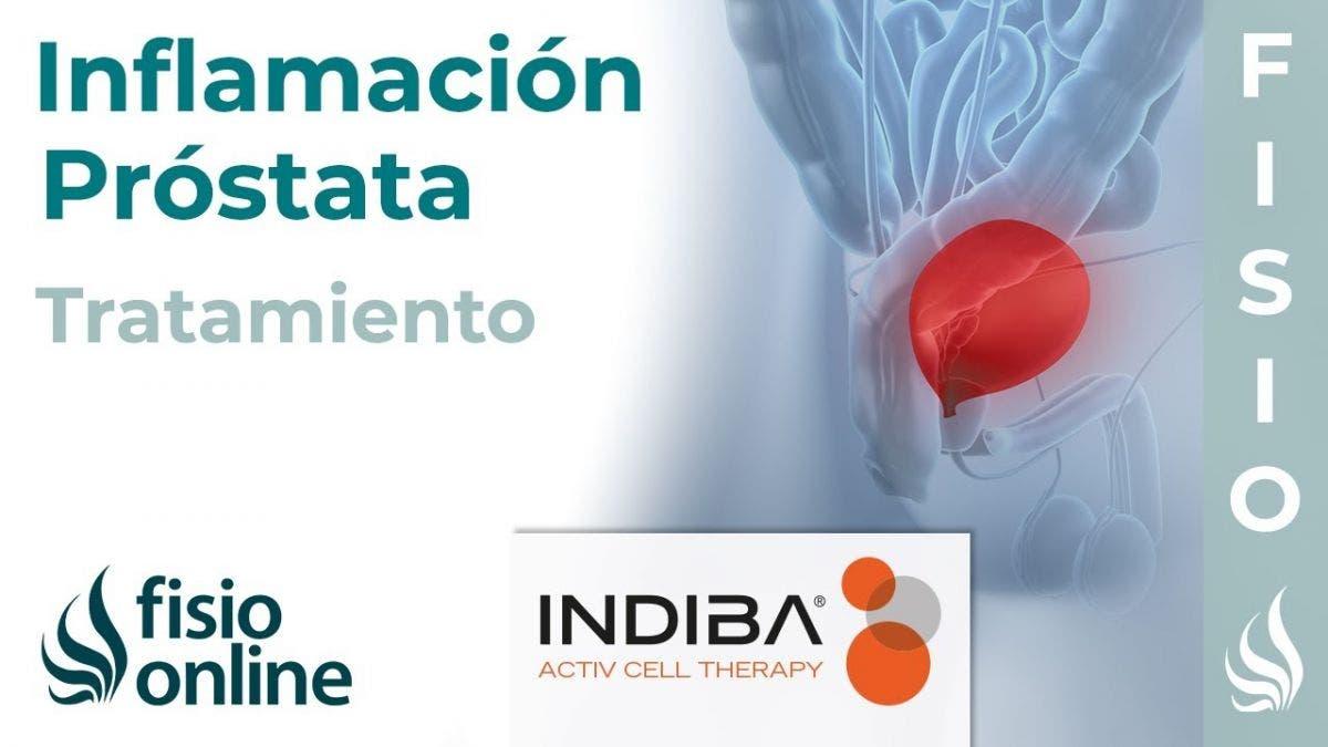 Pautas para el tratamiento de la prostatitis bacteriana crónica