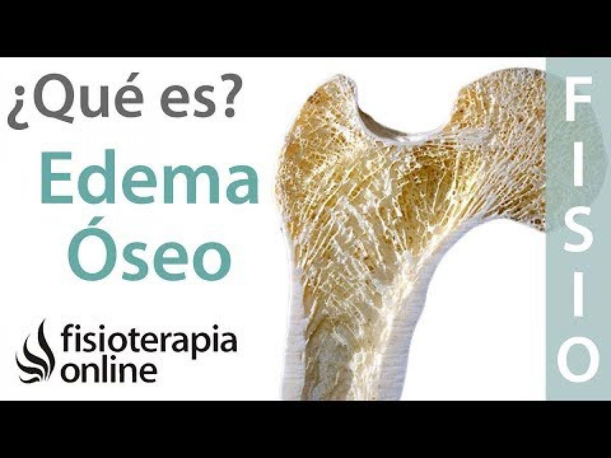 edema pélvico médula ósea