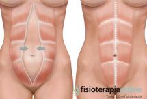 Diástasis de los rectos abdominales. Qué es y consejos para su cuidado.