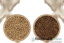 Osteoporosis: Causas, síntomas y tratamiento dietético y nutricional.