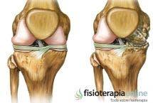 Artrosis en el deporte ¿Cómo cuidar nuestra rodilla? Prevención, tratamiento, alimentación y suplementos.