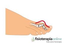 Los Dedos en Martillo. Sus causas, síntomas y tratamiento.