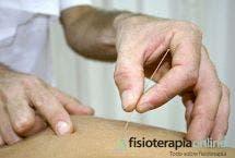 La punción seca en la epicondilitis o dolor epicondileo