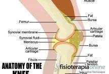 ¿Qué es la tendinitis del tendón rotuliano?