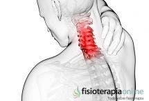 Artrosis cervical o Cervicoartrosis