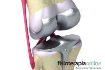 Tratamiento de rehabilitacion de una protesis de rodilla