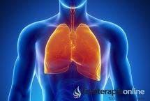 Lo que necesitas saber sobre la fibrosis quística.
