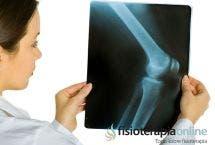 Artrosis o desgaste de rodilla, 5 consejos de un fisioterapeuta
