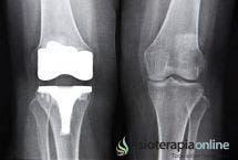 Tratamiento y recuperación de artrosis de rodilla. Cirugía y fisioterapia