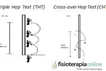 Qué son los Hop Test