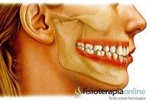 Osteopatía y la mal oclusión.