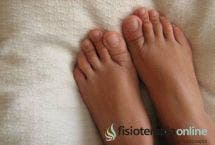Sabañones en los pies. ¿Como evitarlos?
