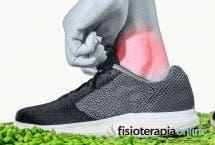 Fracturas de tobillo ¿Qué es? Tratamiento y ejercicios de rehabilitación
